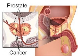 erectile-dysfunction-causes-prostate-cancer