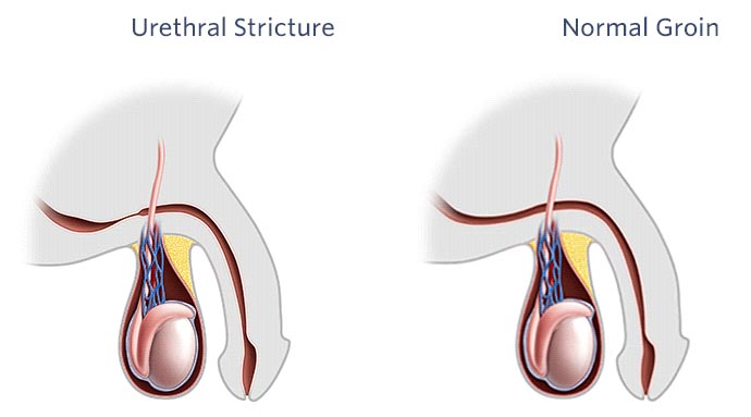 Urethral Stricture Disease: Causes, Symptoms, & Prevention Disease ...