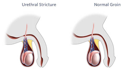 Urethral Stricture Disease and Treatment in India