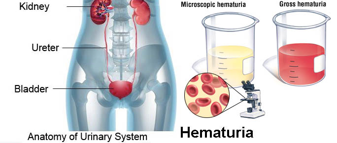 Blood in Urine - Hematuria Causes, Symptoms, Diagnosis, Complications, Treatment in India