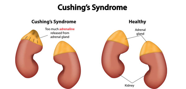 Cushing Syndrome: Signs, Causes, diagnosis Treatment in India
