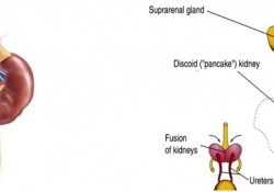 Renal Fusion (Horseshoe Kidney) Causes, Symptoms, Diagnosis, Complications, Treatment in India