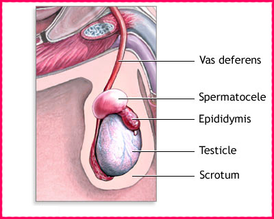 Spermatoceles Causes, Symptoms, Diagnosis, Complications, Treatment in India