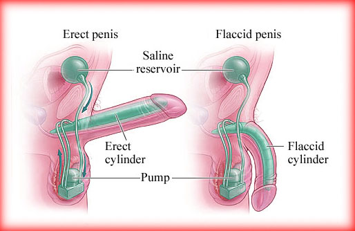 what is penile prosthesis and how it works