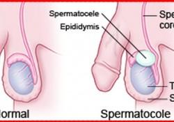 spermatoceles diagnosed and treatment in india