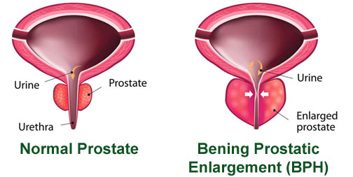 Problem with Your Prostate? Diagnosis, Signs, Symptoms and Treatment in India