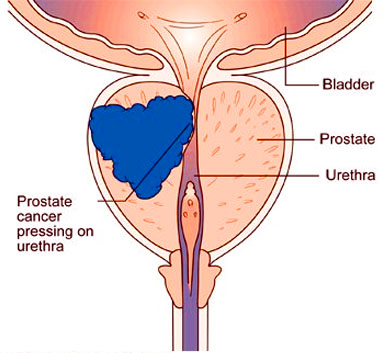 DETECTION OF PROSTATE CANCER