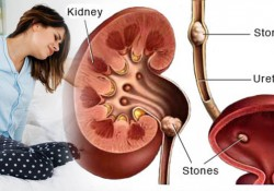Kidney Stone Causes, Symptoms, Diagnosis, Complications, Treatment in India