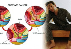 How to reduce the risk of erectile dysfunction following prostate cancer surgery