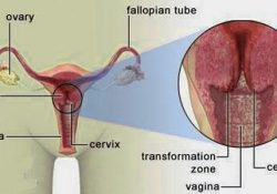 cancer-prone zone where vagina and cervix meet