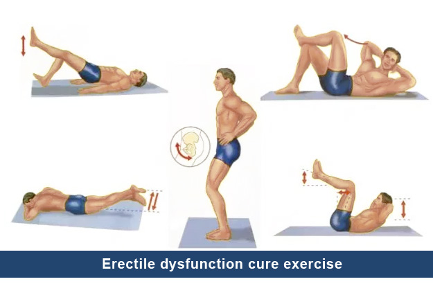 Erectile dysfunction cure exercise